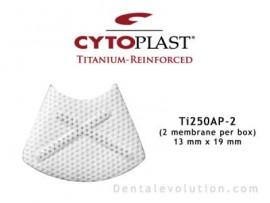 Ti-250 Anterior Perio (2 membranes per box)